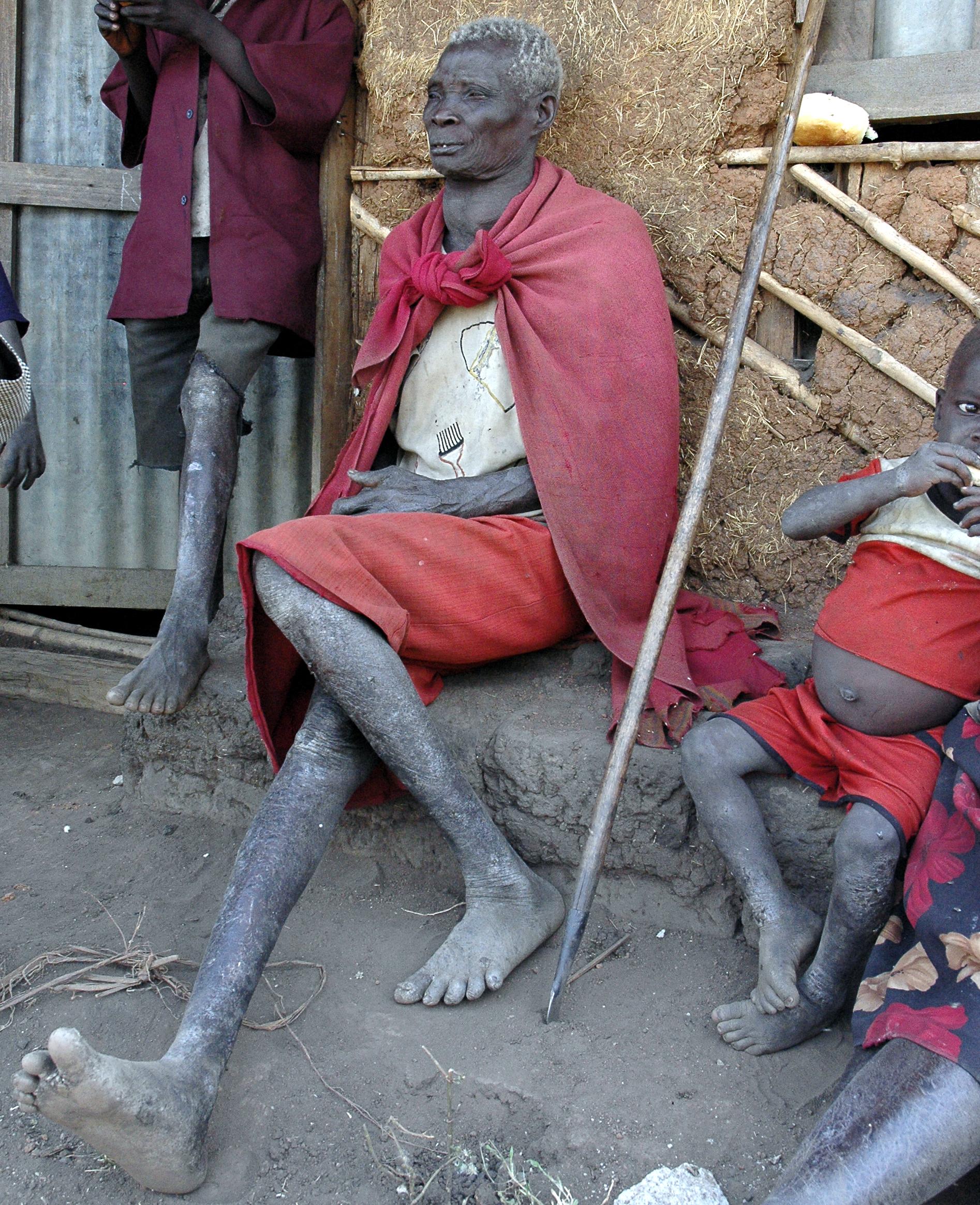 Mazjenger (oude vrouw)(Nilelithic tribe)(west Ethiopia)(2005)