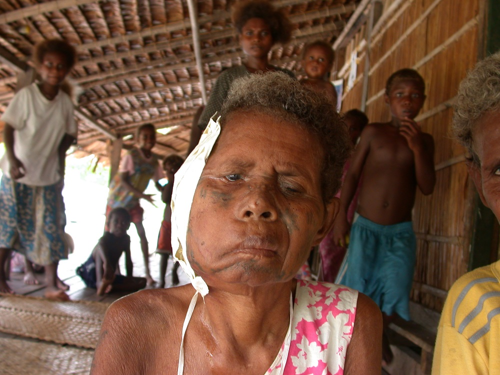 Solomon Islands, betelnut cancer, 2003